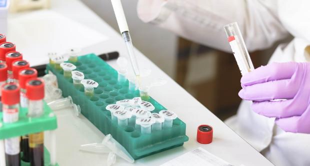 laboratorio analisi sars cov 2