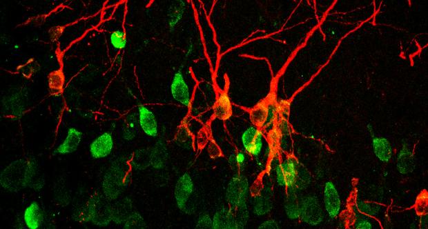 neuroni immaturi